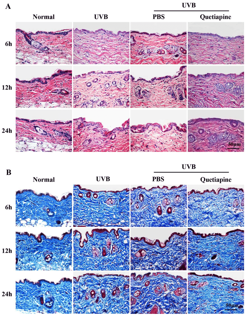 medium resolution of quetiapine protects skin from uvb induced damage in histological level download scientific diagram