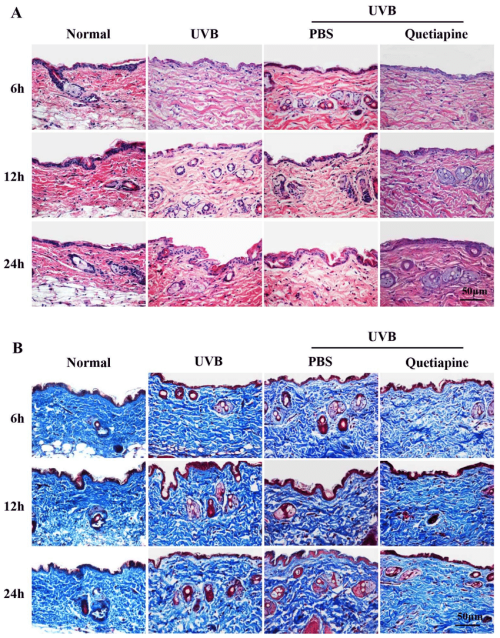 small resolution of quetiapine protects skin from uvb induced damage in histological level download scientific diagram