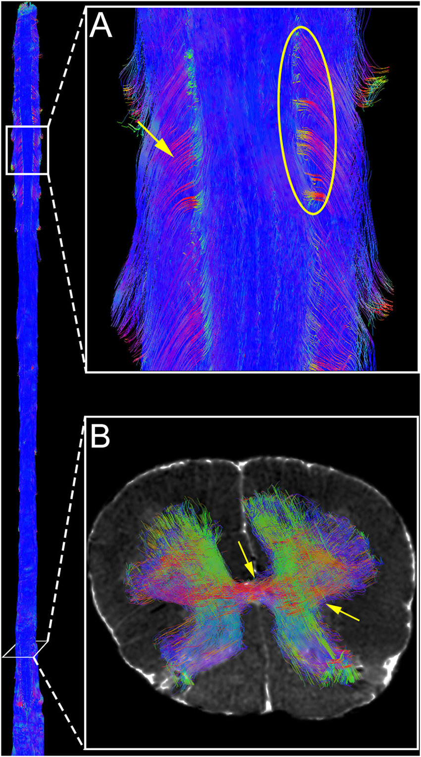 hight resolution of directionally colored diffusion tractography of the human spinal cord a dorsal view of whole spinal