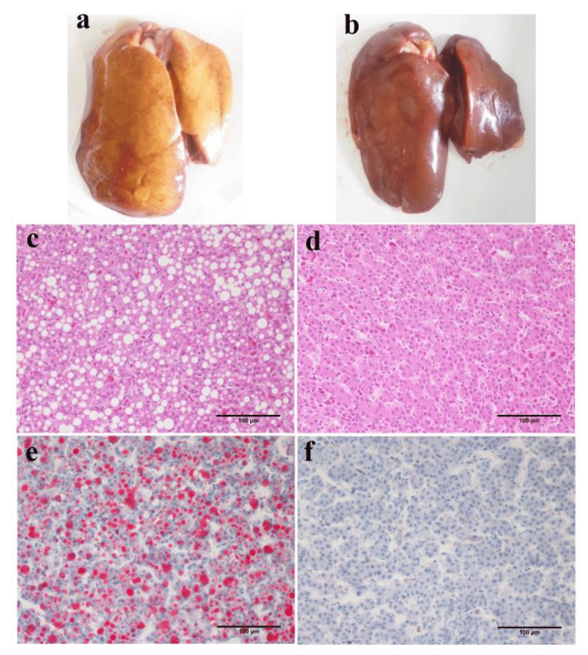 Typical features of fatty liver in terms of gross appearance and... | Download Scientific Diagram