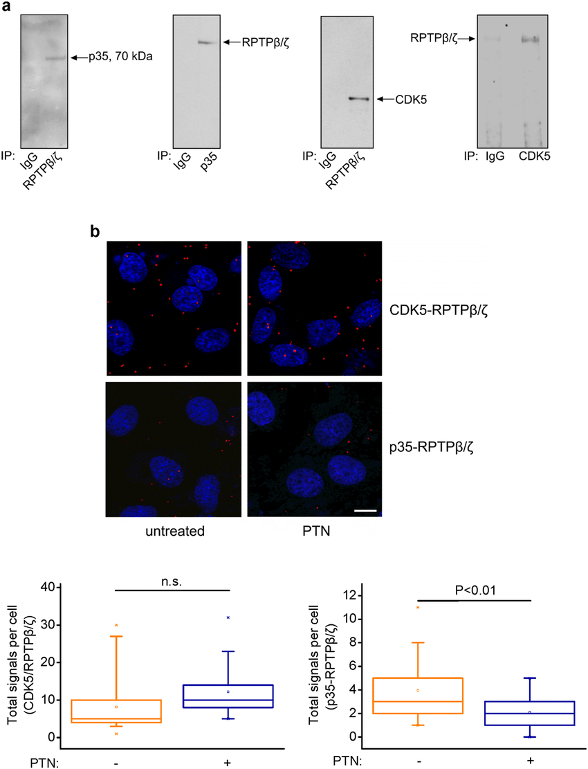 medium resolution of cdk5 and its activator p35 interact with rptp a huvec lysates