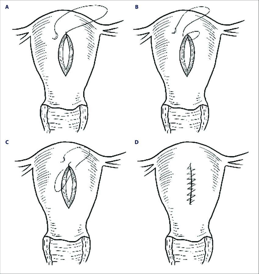 Demonstration of the 'baseball' suture technique for