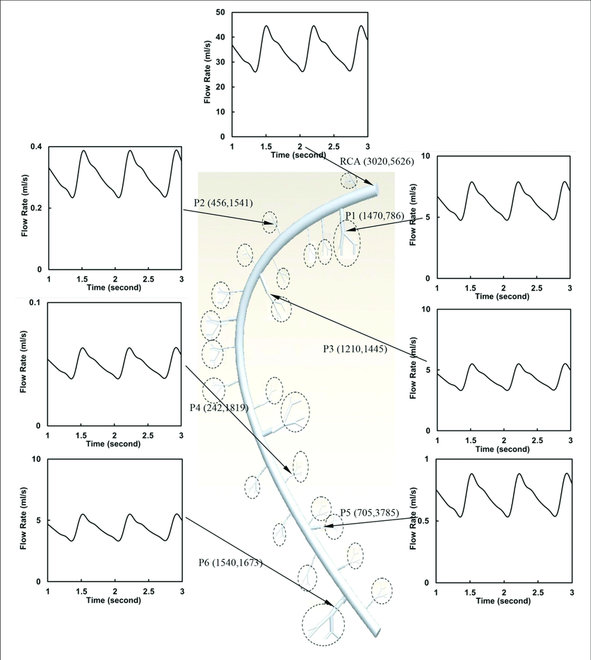 hight resolution of flow waves at the inlet and primary branches p1 p6 of rca