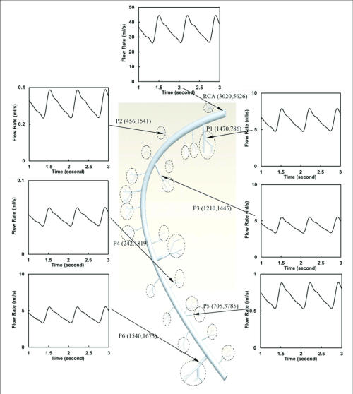 small resolution of flow waves at the inlet and primary branches p1 p6 of rca