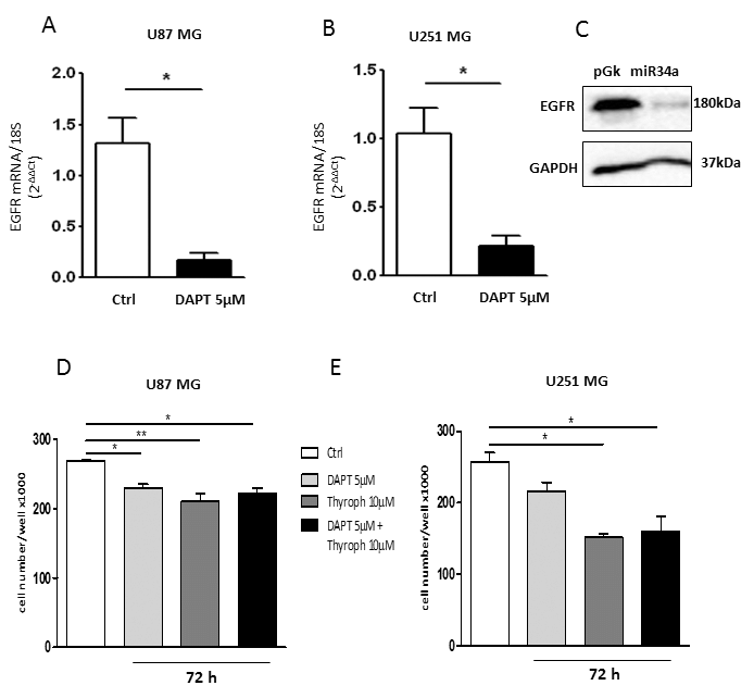 EGFR Expression in GBM cell lines. Real time RT-PCR and