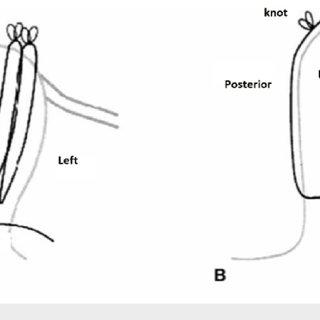 (PDF) Towel Uterus Model for Uterine Compression Sutures