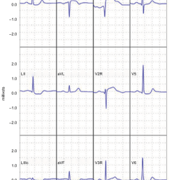reconstructed 12 lead electrocardiogram demonstrating an st elevation myocardial infarction note reprinted [ 850 x 1377 Pixel ]