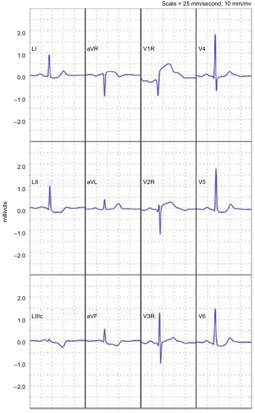 hight resolution of reconstructed 12 lead electrocardiogram demonstrating an st elevation myocardial infarction note reprinted