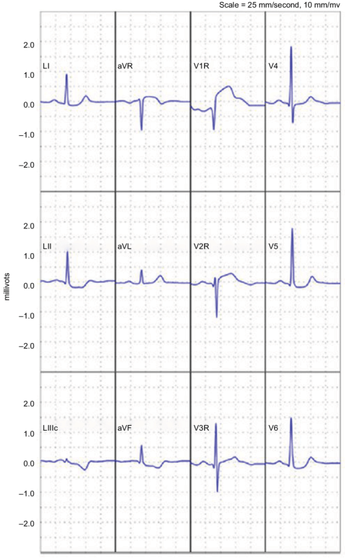 small resolution of reconstructed 12 lead electrocardiogram demonstrating an st elevation myocardial infarction note reprinted