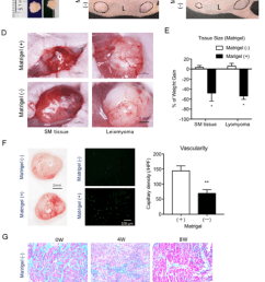 transplantation of tissue pieces isolated from normal human uterine wall and leiomyoma with or without matrigel [ 850 x 1252 Pixel ]