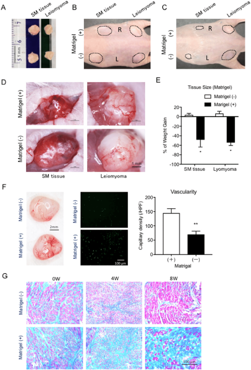 hight resolution of transplantation of tissue pieces isolated from normal human uterine wall and leiomyoma with or without matrigel