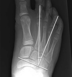 bilateral anteroposterior foot radiographs in the standing weight bearing position of a 12 9 year [ 850 x 1389 Pixel ]