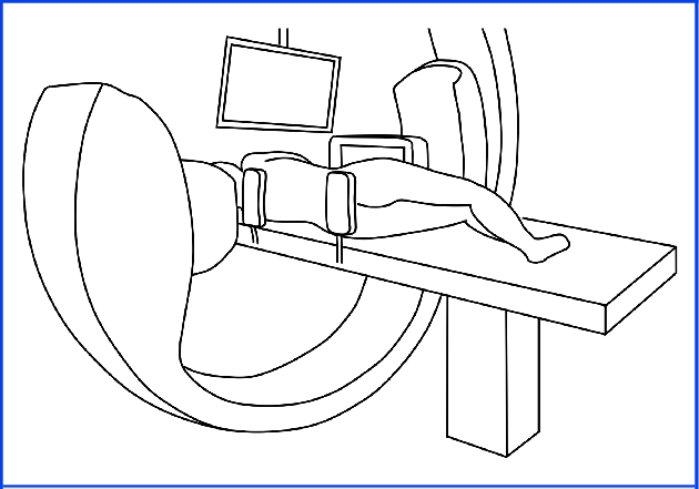 Schematic operative setup of the C-arm of the fluoroscope