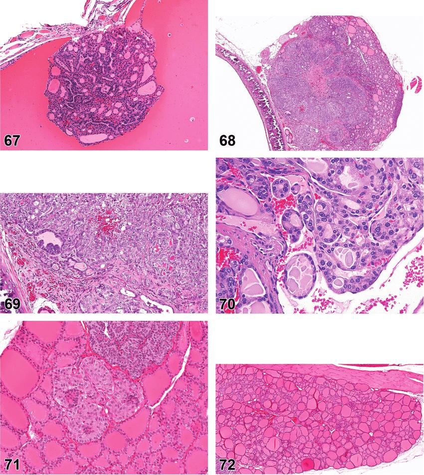 medium resolution of mouse thyroid gland adenoma follicular cell cystic figure 68 rat thyroid