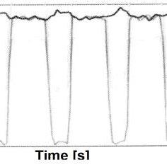 Diagram of the ESP electrohydraulic modulator (ABS Bosch 5