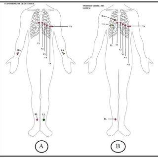 (PDF) ECG Measurements to Emphasize Atrial Potentials