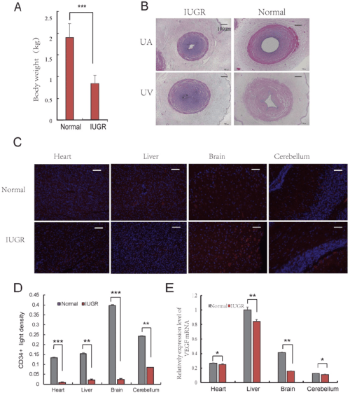 small resolution of angiogenesis of iugr pig was repressed a body weight of the iugr and