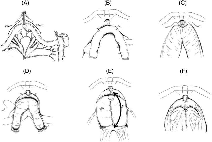 Schema of surgical procedure for U-shaped intracorporeal