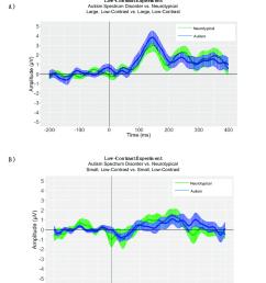 low contrast experiment panel a autism spectrum disorder vs download scientific diagram [ 850 x 1032 Pixel ]