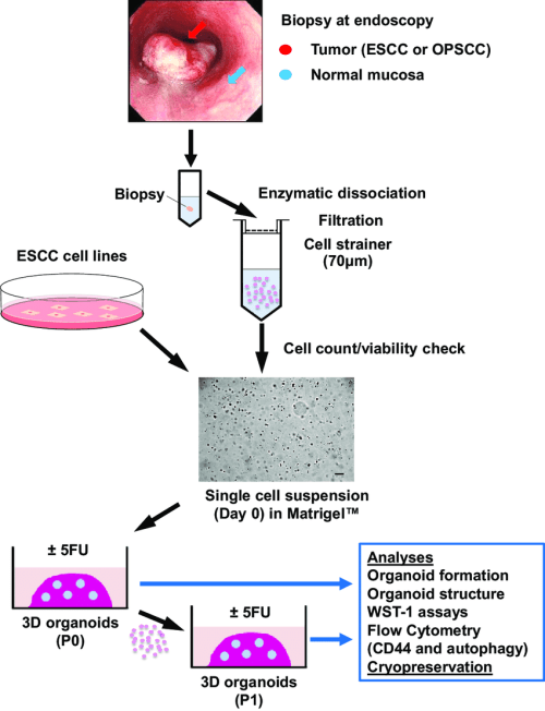 small resolution of 3d organoids generation and analyses biopsies from tumors and adjacent download scientific diagram