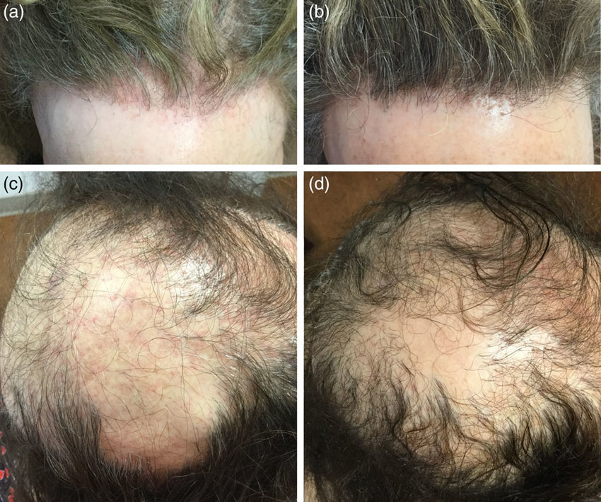 A case of frontal fibrosing alopecia before (a) and after ...
