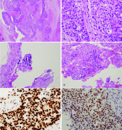 a left ovary and salpinx showed a tumor composed of infiltrative [ 850 x 959 Pixel ]