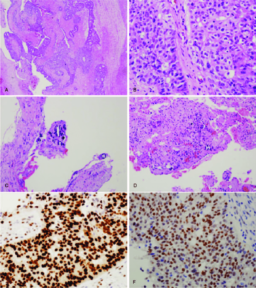 medium resolution of  a left ovary and salpinx showed a tumor composed of infiltrative