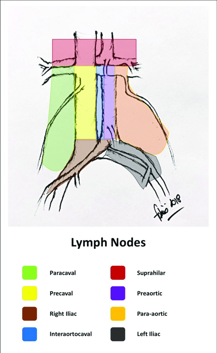 hight resolution of retroperitoneal lymph node areas original drawing by the author