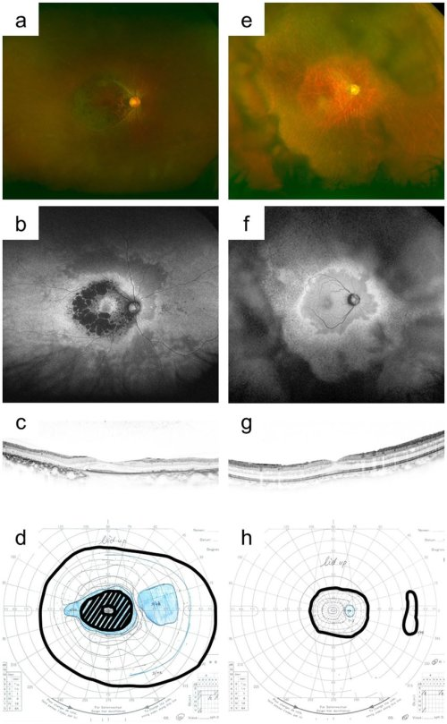 small resolution of representative colour and autofluorescence fundus photographs and download scientific diagram