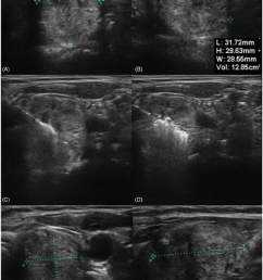 ultrasound images of a thyroid nodule before bipolar rfa a and b during [ 850 x 1272 Pixel ]