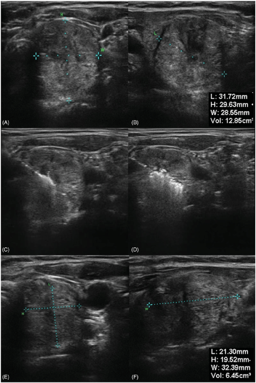 medium resolution of ultrasound images of a thyroid nodule before bipolar rfa a and b during