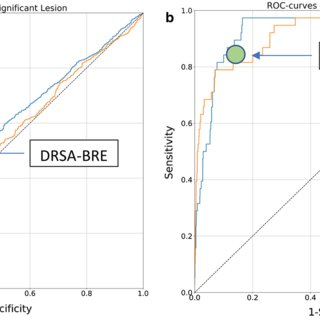 Receiver operating curves presenting the performance of XGboost and... | Download Scientific Diagram
