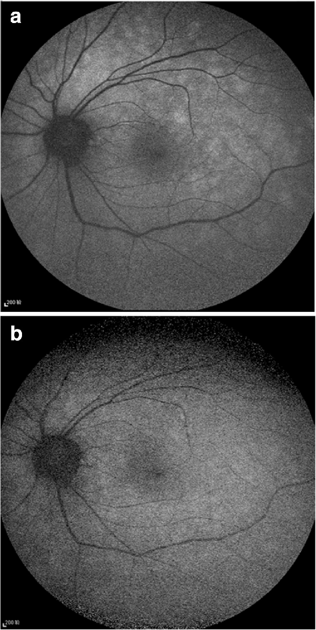 hight resolution of fundus af demonstrated multiple ill defined spots of markedly increased af in the