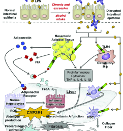 the key event contributing to the pathogenesis of alcoholic liver disease ald chronic [ 850 x 1075 Pixel ]