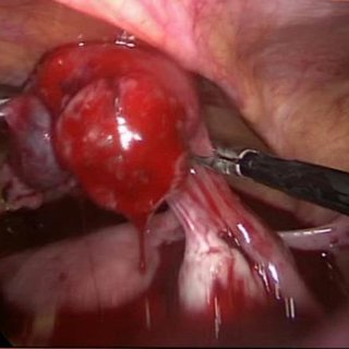 Laparoscopy revealed hemoperitoneum of around 1.5litres ...