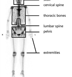 six regions of human skeleton skull cervical spine thoracic bones lumbar spine [ 850 x 1340 Pixel ]