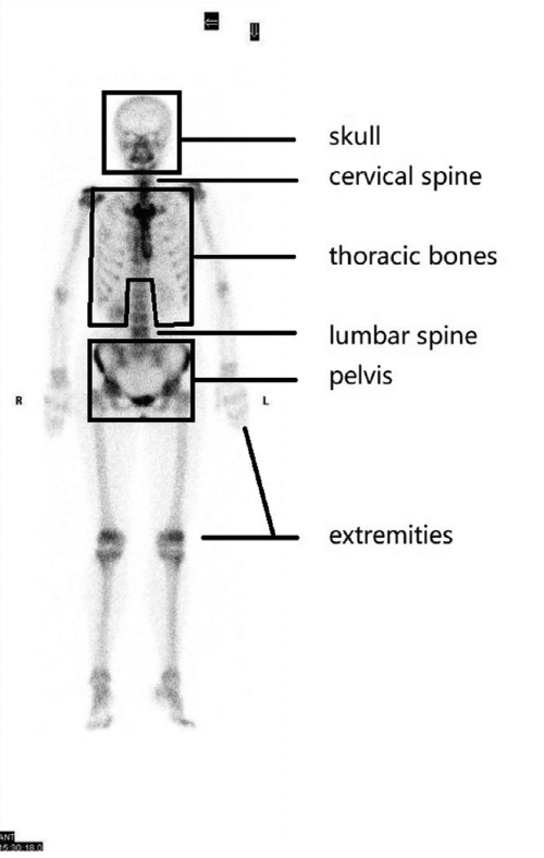 small resolution of six regions of human skeleton skull cervical spine thoracic bones lumbar spine