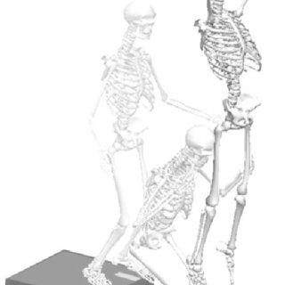 (PDF) Biomechanical and Functional Outcomes After Medial