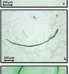stereo microscope images scale bar 100 m of samples deposited on polystyrene surface  [ 850 x 2043 Pixel ]