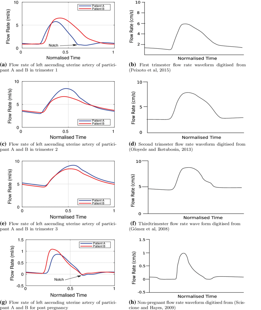 hight resolution of comparison of participant a and b left ascending uterine artery flow rate waveforms and scaled published