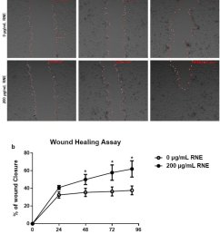 rne treatment accelerates wound healing in vitro scratch assays assessing the migration rate of hacat [ 850 x 994 Pixel ]