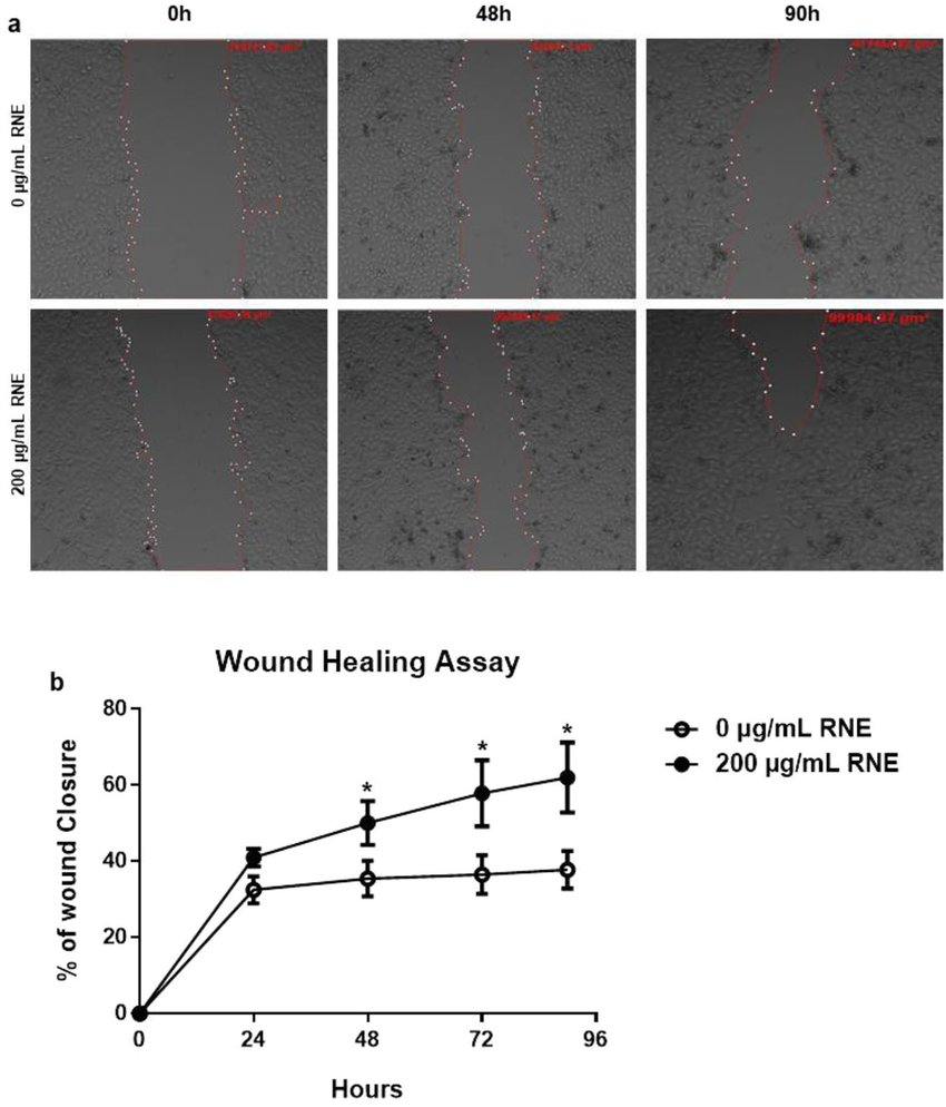 hight resolution of rne treatment accelerates wound healing in vitro scratch assays assessing the migration rate of hacat