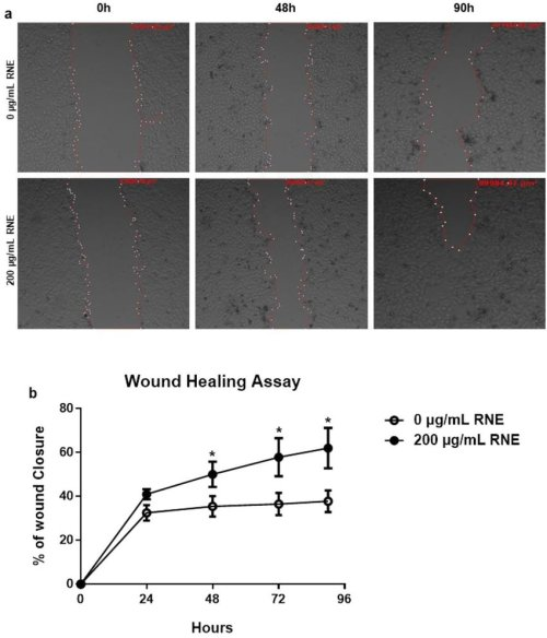small resolution of rne treatment accelerates wound healing in vitro scratch assays assessing the migration rate of hacat