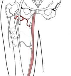 diagram illustrating gracilis muscle and its pedicle branching from the median circumflex femoral artery [ 769 x 1362 Pixel ]