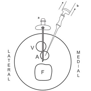 (PDF) Arterial Access for Cardiovascular Procedures