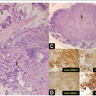 (PDF) Case report of synchronous post-lung transplant ...