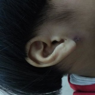 Cystic swelling over right infra-auricular area ...
