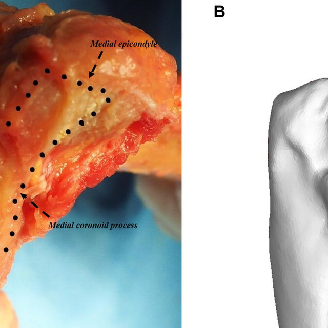 A The anatomy of the LUCL of elbow joint: lateral ...
