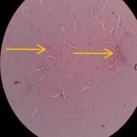 (PDF) Comparison of semen characteristics between ...