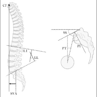 Radiographic parameters of the sagittal hip-spine